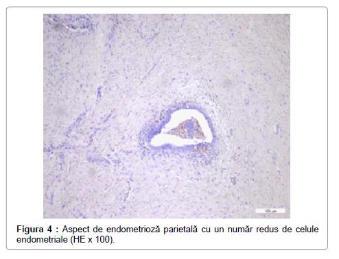 anthelmintic drugs otc human papillomavirus long term side effects