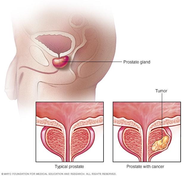 cancer prostata sintomas metastasis oxiuros tratamiento chile