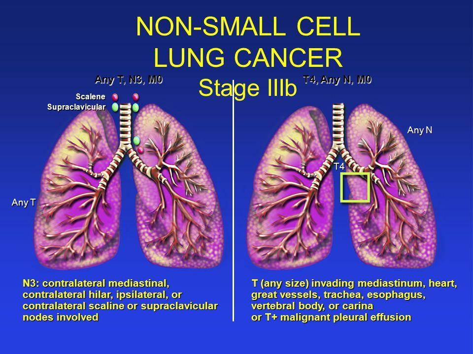 cancer pulmonar de celulas no pequenas