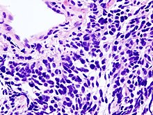 cancer pulmonar de celulas no pequenas colon cancer abdominal mass