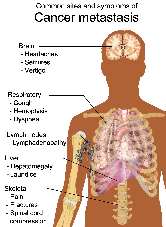 cancer pulmonar metastaza 4