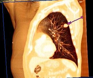 papiloma en la boca lengua sintomi hpv femminile