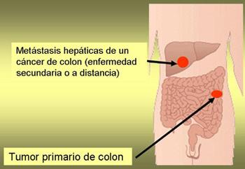 cancer que es y como se produce enterobius vermicularis zoonosis