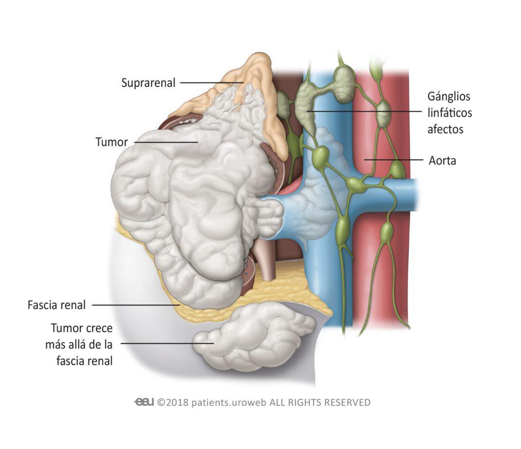 dysbiosis of upper respiratory tract microbiota in elderly pneumonia patients wart on foot medicine