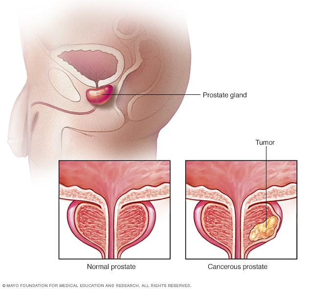 cancer terapia hormonal breast cancer abdominal fluid