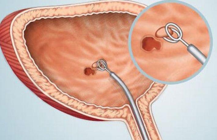 Cancer de vezica urinara - parohiamogosani.ro