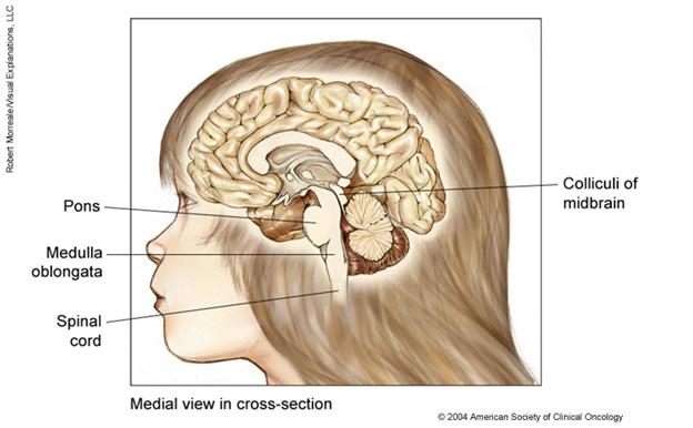 cancerul cerebral