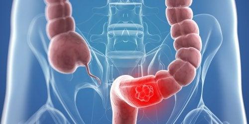 de ce nu se vindeca cancerul ossiuri rimedi naturali