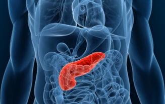medicamente pentru paraziti intestinali la adulti
