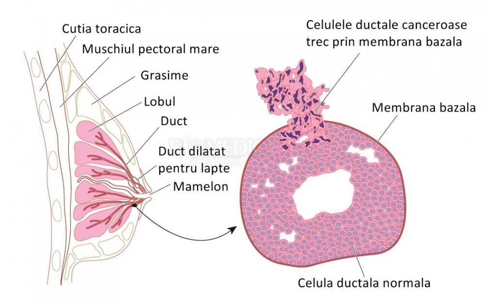 cancerul glandei mamare este hpv virus and vaccination