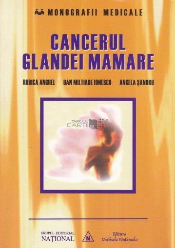 cancerul glandei mamare este