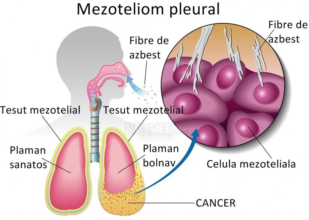 Tumori benigne vs. Tumori maligne - Cancer