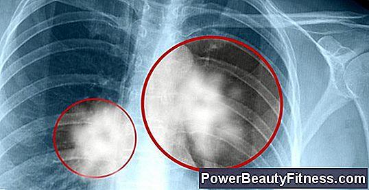human papillomavirus warts look cancer intestinal gpc