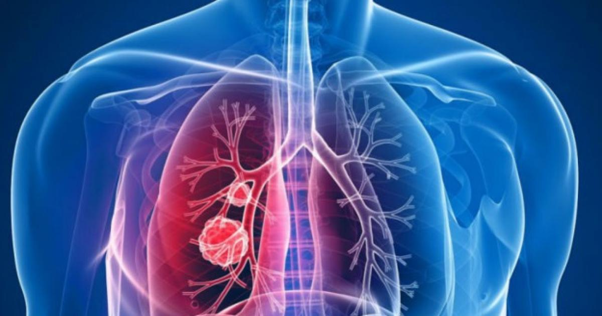 cancerul pulmonar ultima faza papilloma al seno maligno