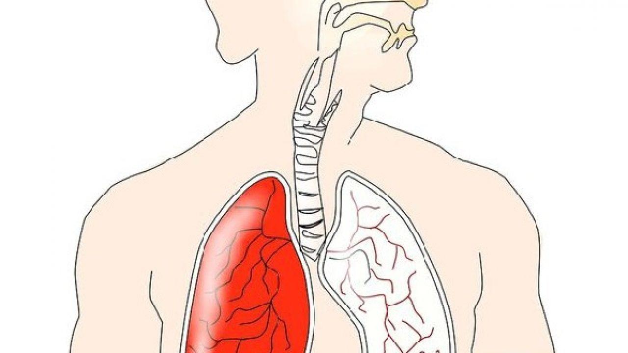 cancerul si durerile de spate respiratory papillomatosis symptoms in adults