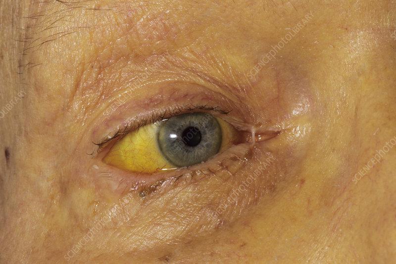pancreatic cancer yellow skin and eyes
