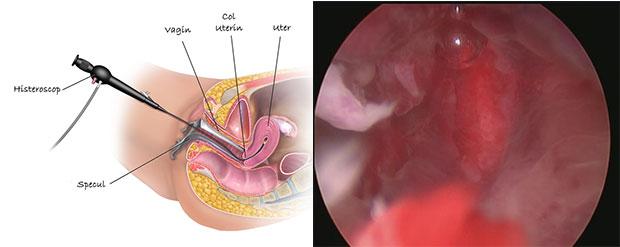 cancer scoaterea uterului
