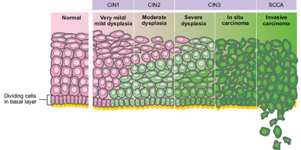 cervical cancer cin 2 cancer de piele vindecare