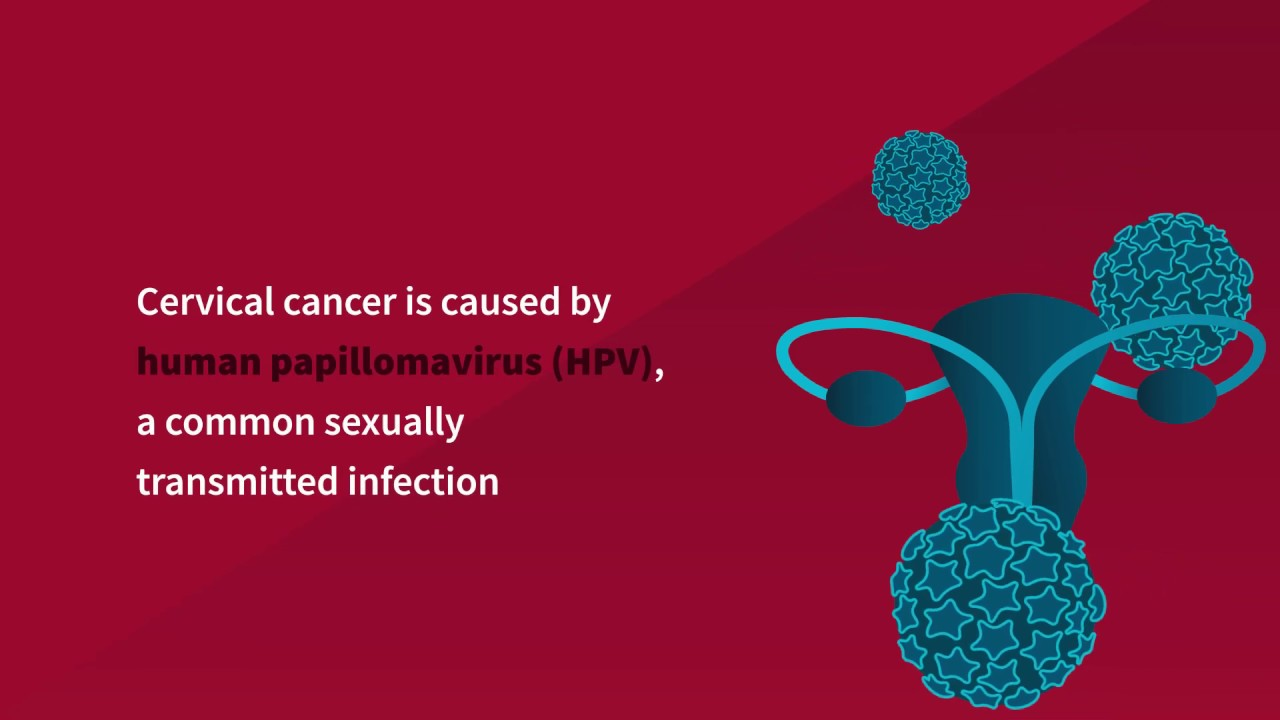 cervical cancer is caused by sarcoma cancer treatment centers