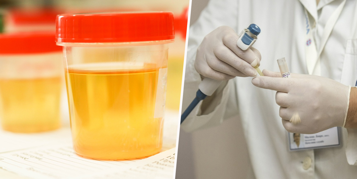 cervical cancer urine test paraziti de piele la om
