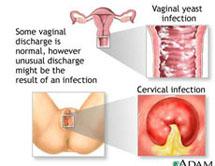 hpv swollen uvula cancer canal biliar