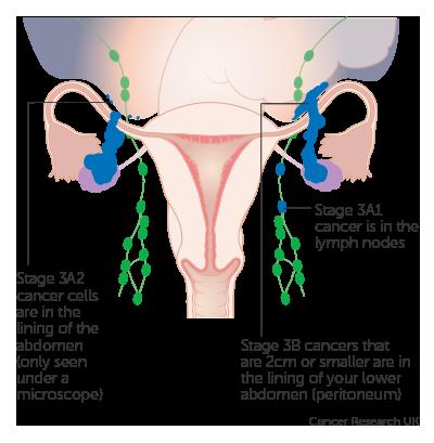 ovarian cancer treatable cancer de san inoperabil
