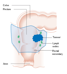 imagenes de virus del papiloma humano en boca traitement contre papillomavirus humain