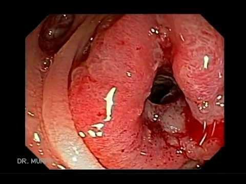 colorectal cancer colonoscopy