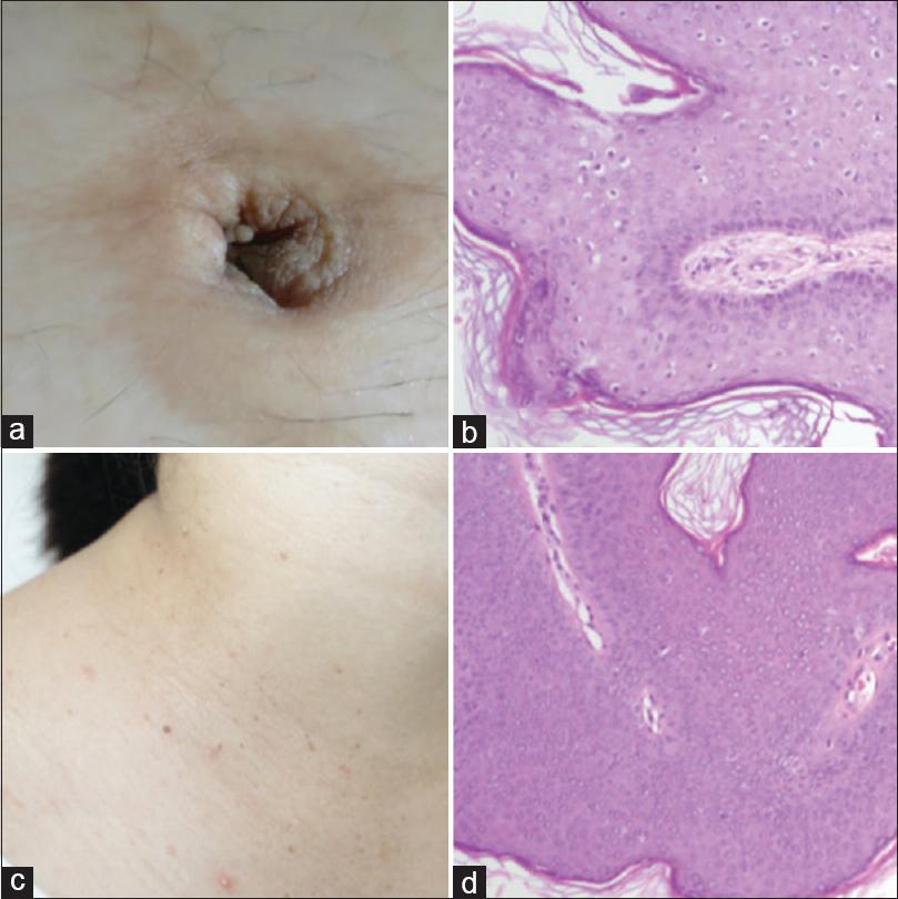 condyloma acuminata during pregnancy
