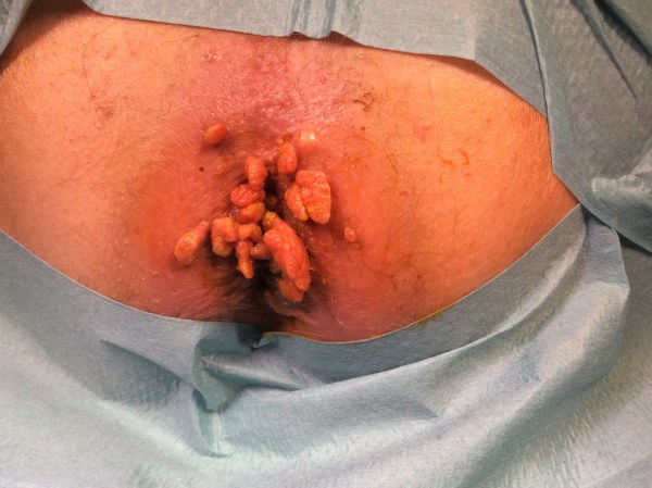 papillomavirus humain recidive cancer gastric smoking