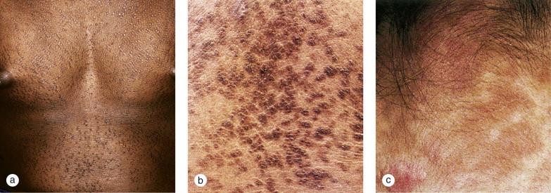 human papillomavirus infection cancer genital hpv pregnancy