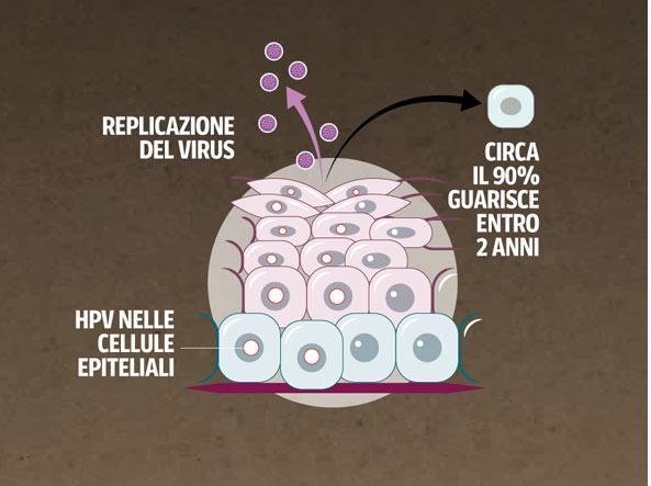 il papilloma virus puo sparire