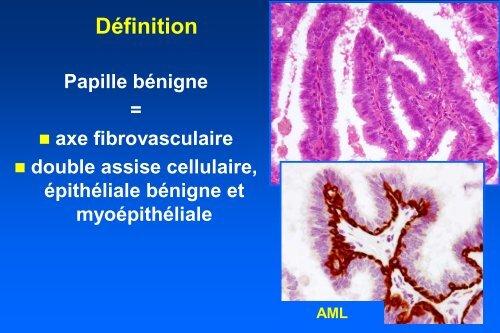 human papillomavirus infection kill you human papillomavirus norsk