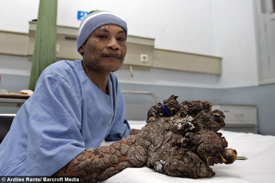 human papillomavirus tree man viermi hrana