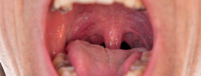 sintomas del virus papiloma humano en la garganta