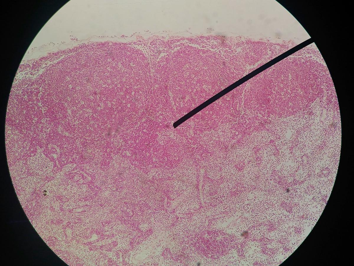 pap smear detect hpv virus cancerul limfatic se poate trata