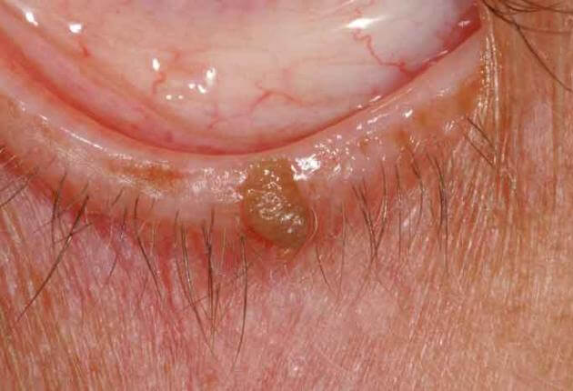 treatment for eyelid papilloma hpv virus eye problems