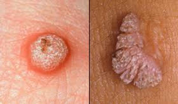 papilloma virus herpes genitale