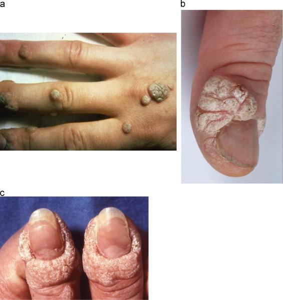 hpv virus skin conditions
