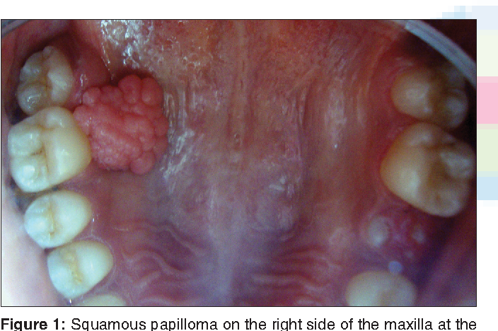 squamous papilloma soft palate