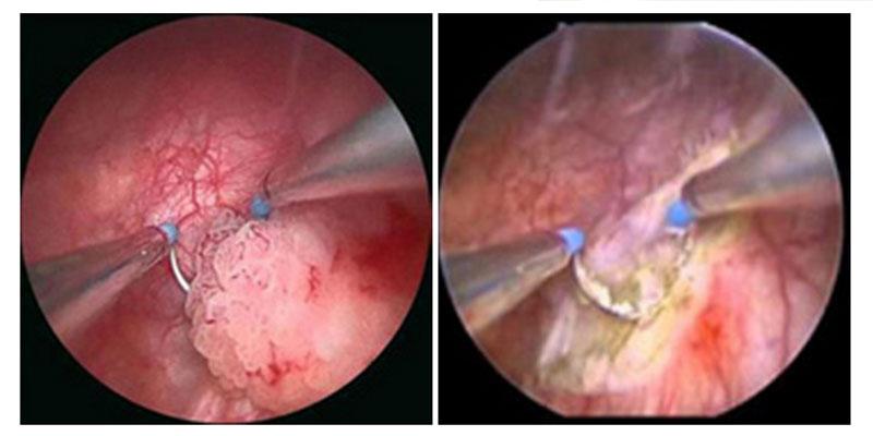 papilloma vescica sintomi