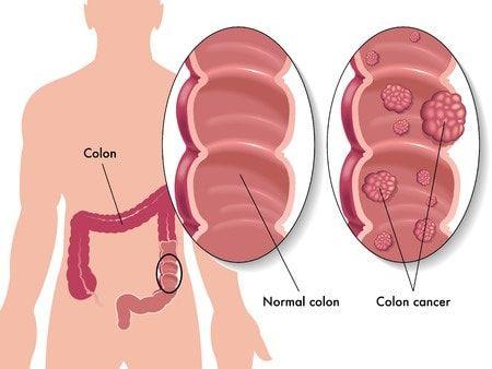 schistosomiasis diagnostik
