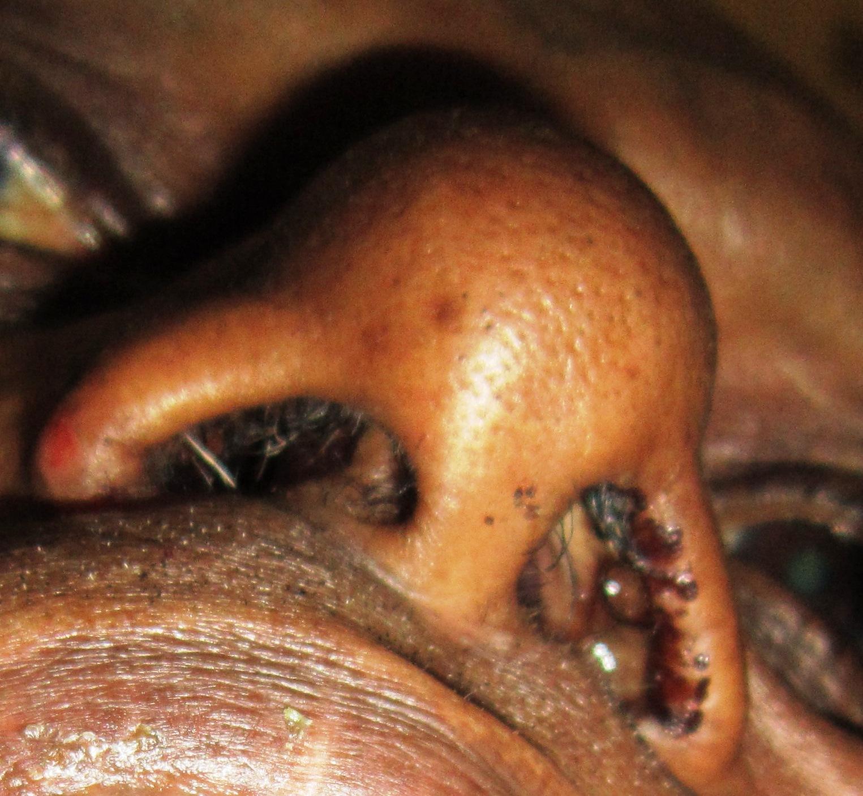 human papillomavirus in nose