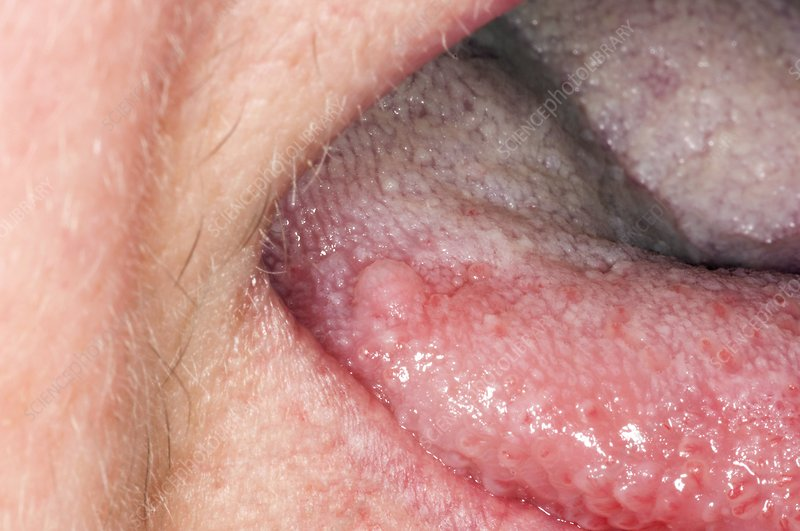 squamous papilloma tongue removal