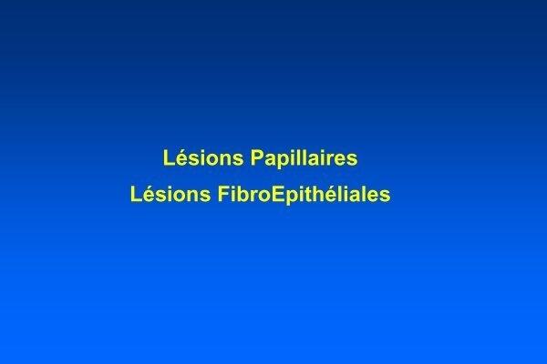 definition de papillome hpv causes cervical polyps