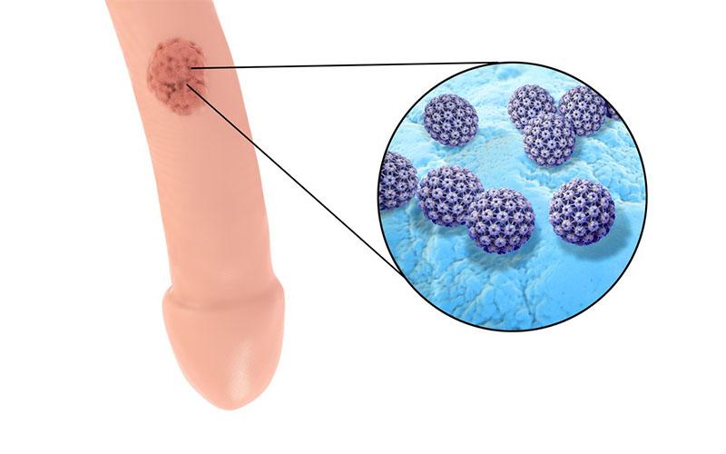 papillomavirus meaning in tamil papiloma virus humano verrugas genitales