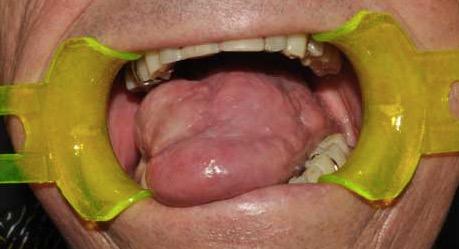 papilloma virus gola esami test hiv anonimo napoli