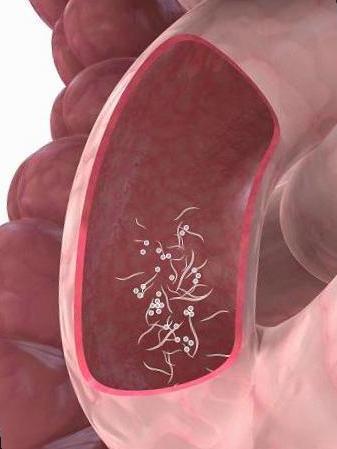 oxiuros causas sintomas
