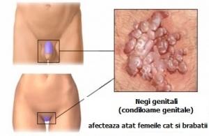 virusul papiloma cu risc oncogen mare