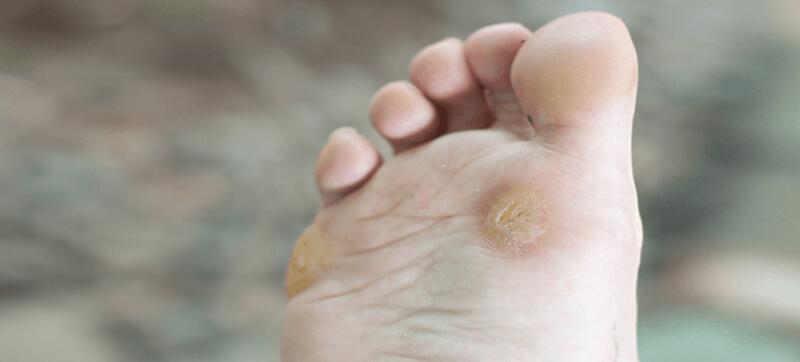 wart treatment bangalore